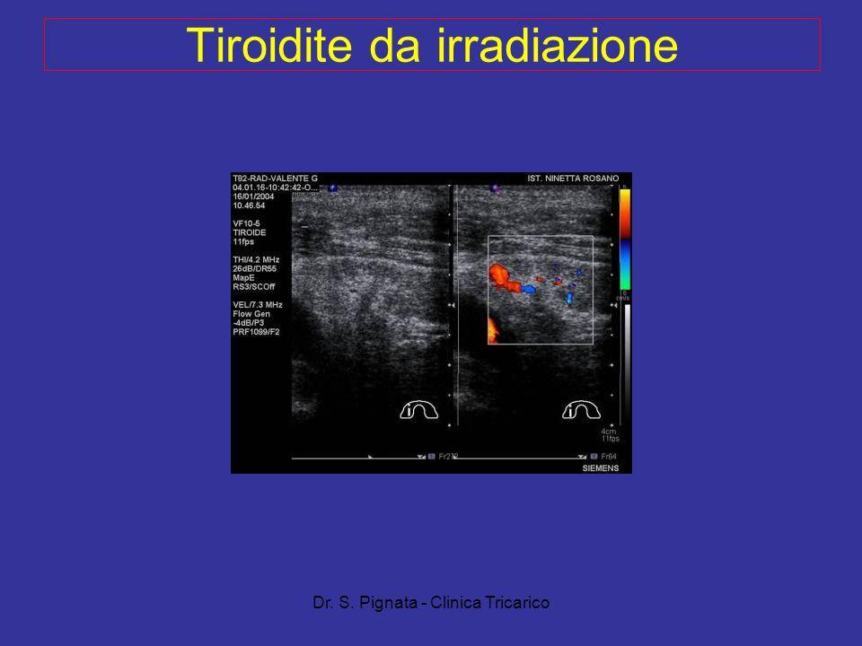 Dr. S. Pignata - Clinica Tricarico Tiroidite da irradiazione