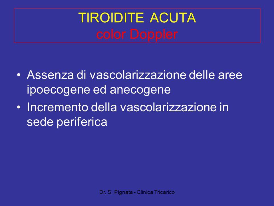 Dr. S. Pignata - Clinica Tricarico TIROIDITE ACUTA color Doppler Assenza di vascolarizzazione delle aree ipoecogene ed anecogene Incremento della vasc