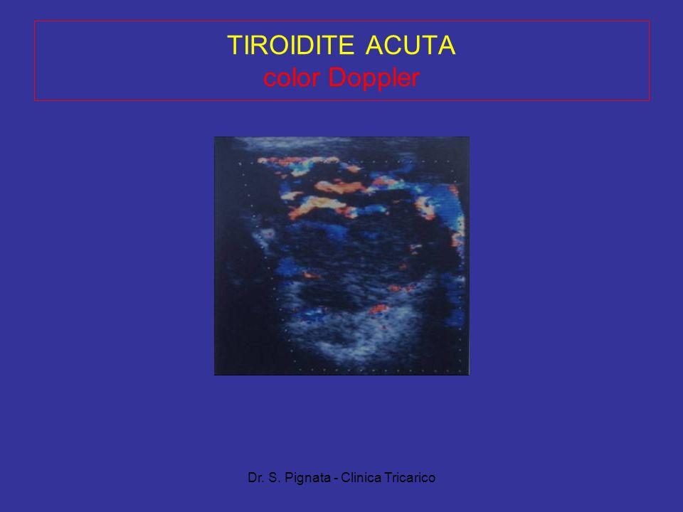 Dr. S. Pignata - Clinica Tricarico TIROIDITE ACUTA color Doppler
