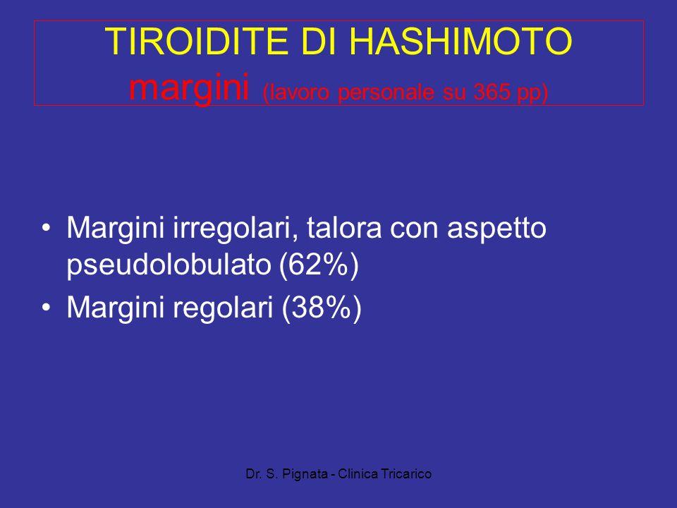 Dr. S. Pignata - Clinica Tricarico TIROIDITE DI HASHIMOTO margini (lavoro personale su 365 pp) Margini irregolari, talora con aspetto pseudolobulato (