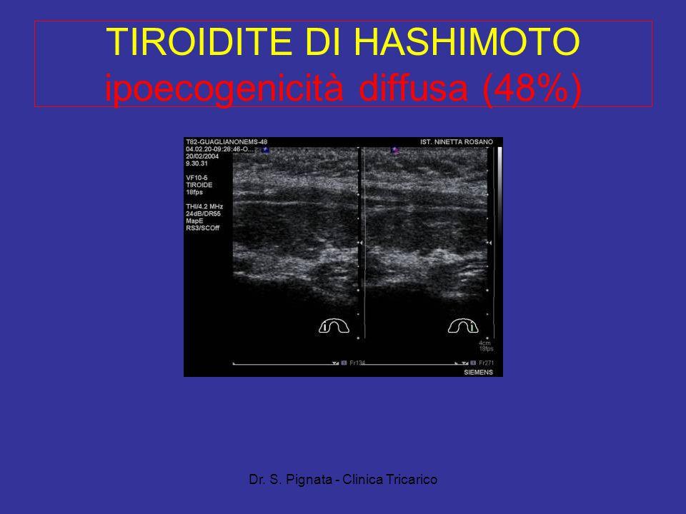 Dr. S. Pignata - Clinica Tricarico TIROIDITE DI HASHIMOTO ipoecogenicità diffusa (48%)