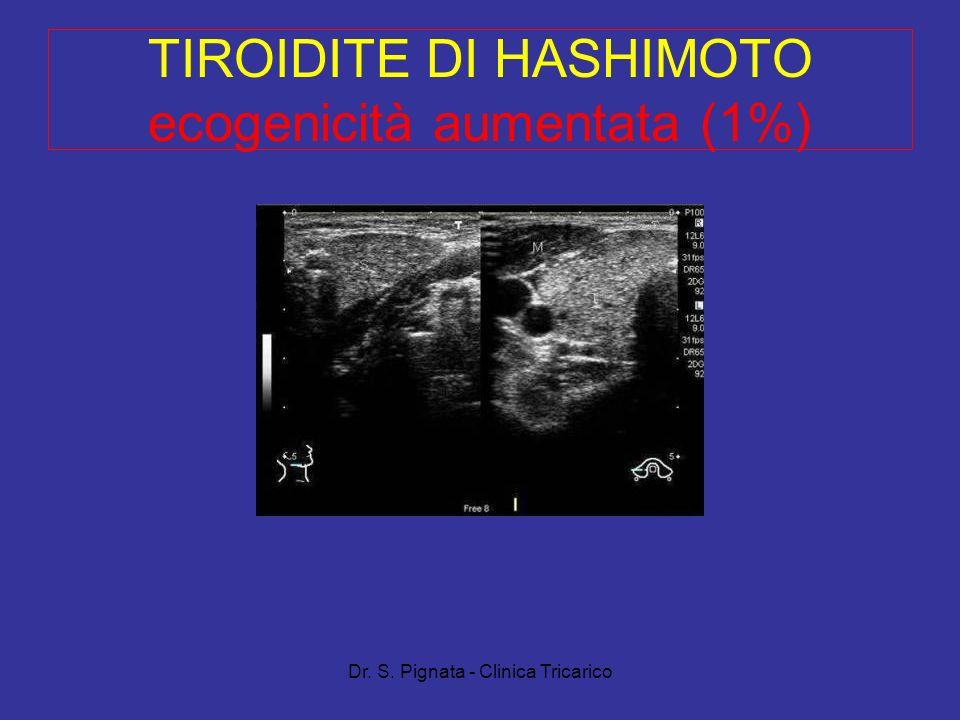 Dr. S. Pignata - Clinica Tricarico TIROIDITE DI HASHIMOTO ecogenicità aumentata (1%)