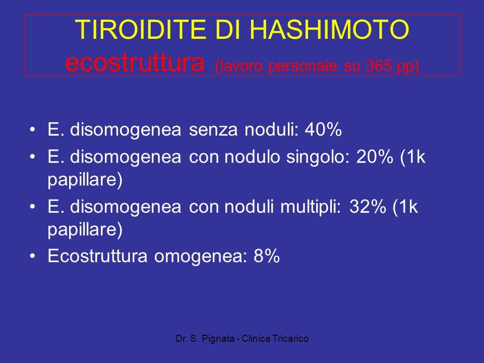 Dr. S. Pignata - Clinica Tricarico TIROIDITE DI HASHIMOTO ecostruttura (lavoro personale su 365 pp) E. disomogenea senza noduli: 40% E. disomogenea co