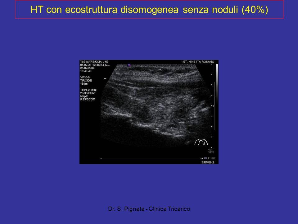Dr. S. Pignata - Clinica Tricarico HT con ecostruttura disomogenea senza noduli (40%)