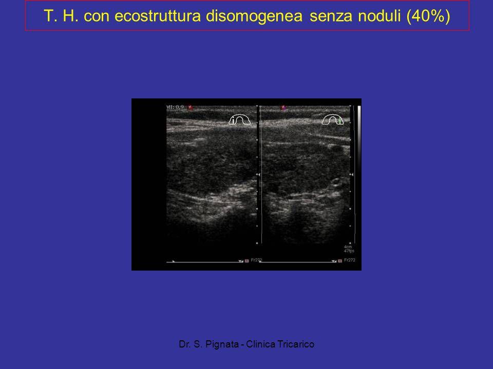 Dr. S. Pignata - Clinica Tricarico T. H. con ecostruttura disomogenea senza noduli (40%)