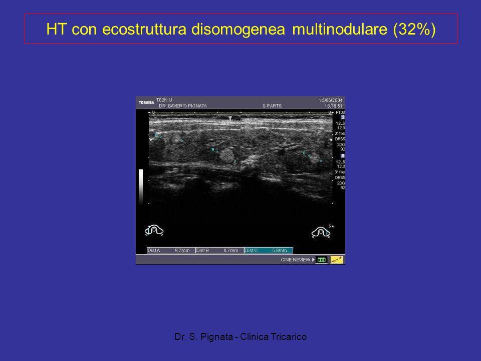 Dr. S. Pignata - Clinica Tricarico HT con ecostruttura disomogenea multinodulare (32%)