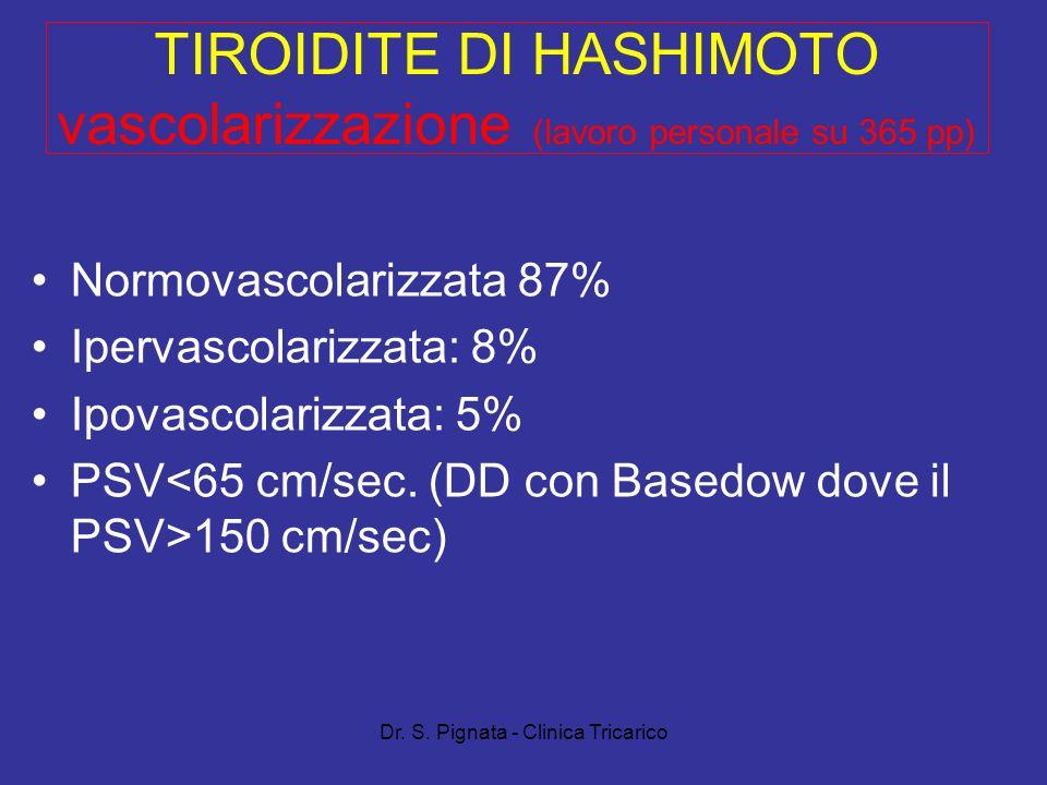 Dr. S. Pignata - Clinica Tricarico TIROIDITE DI HASHIMOTO vascolarizzazione (lavoro personale su 365 pp) Normovascolarizzata 87% Ipervascolarizzata: 8