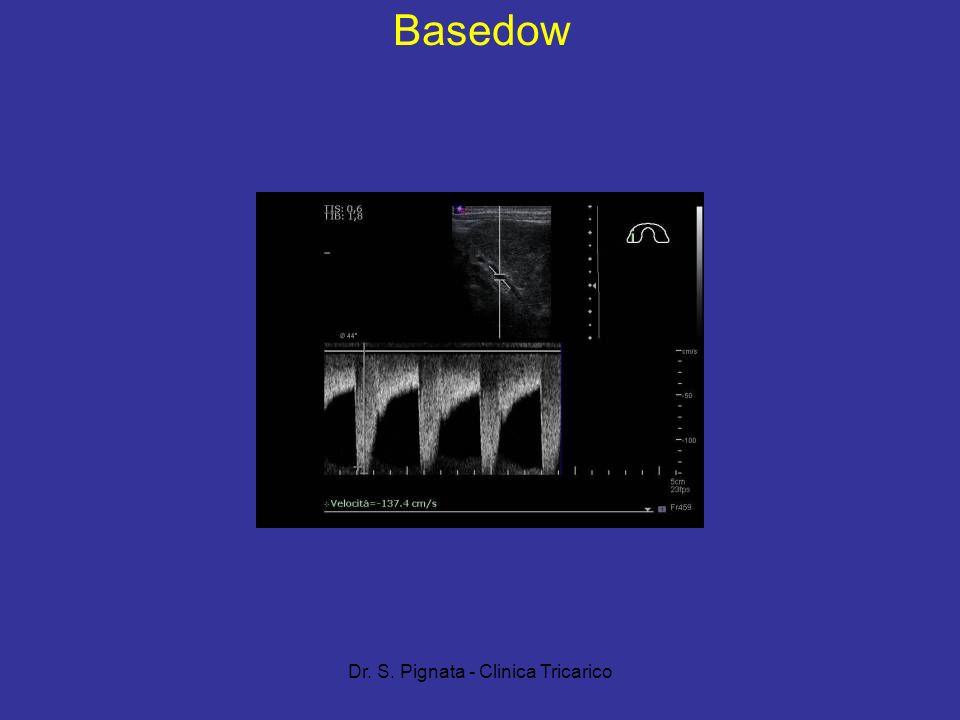 Dr. S. Pignata - Clinica Tricarico Basedow