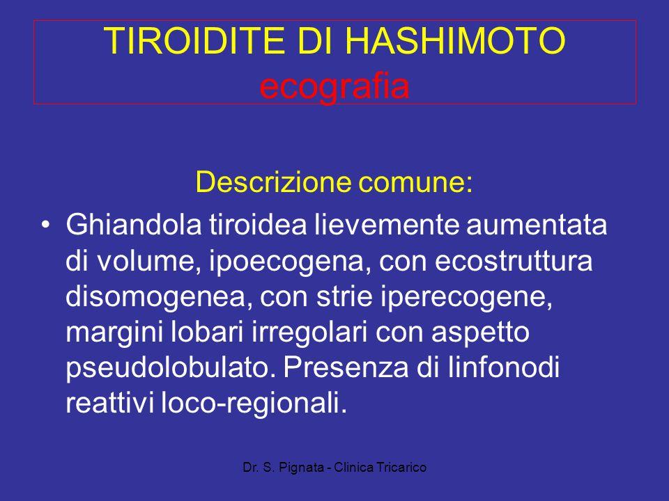 Dr. S. Pignata - Clinica Tricarico TIROIDITE DI HASHIMOTO ecografia Descrizione comune: Ghiandola tiroidea lievemente aumentata di volume, ipoecogena,