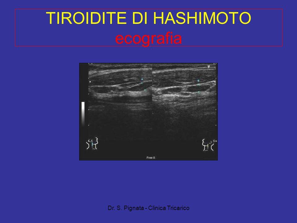 Dr. S. Pignata - Clinica Tricarico TIROIDITE DI HASHIMOTO ecografia