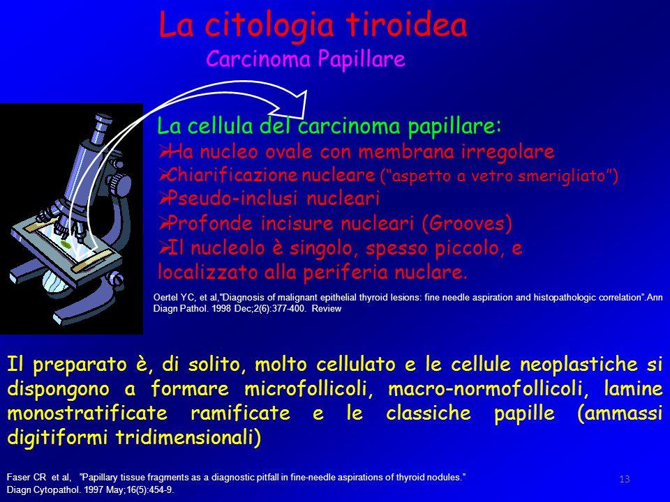 13 La citologia tiroidea Carcinoma Papillare La cellula del carcinoma papillare: Ha nucleo ovale con membrana irregolare Chiarificazione nucleare (asp