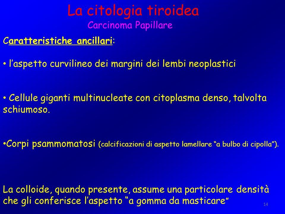 14 La citologia tiroidea Carcinoma Papillare Caratteristiche ancillari: laspetto curvilineo dei margini dei lembi neoplastici Cellule giganti multinuc
