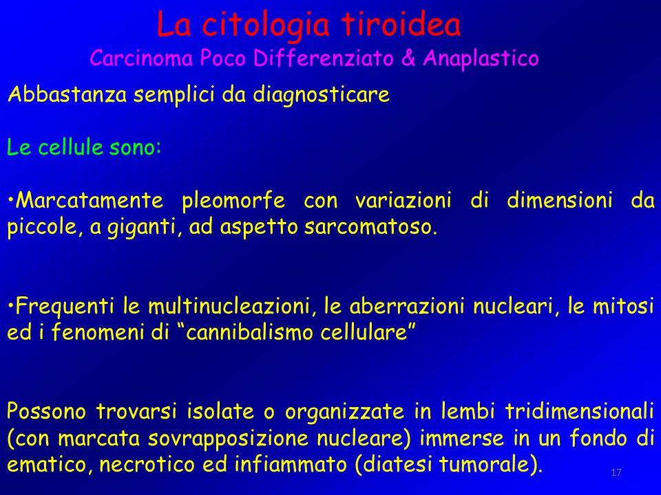 17 La citologia tiroidea Carcinoma Poco Differenziato & Anaplastico Abbastanza semplici da diagnosticare Le cellule sono: Marcatamente pleomorfe con v
