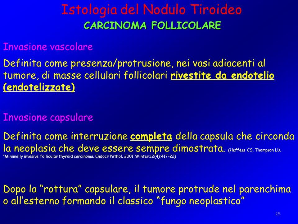 25 Istologia del Nodulo Tiroideo CARCINOMA FOLLICOLARE Invasione vascolare Definita come presenza/protrusione, nei vasi adiacenti al tumore, di masse
