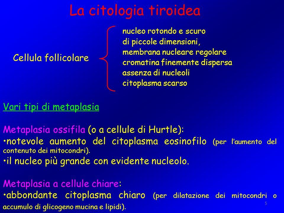 5 La citologia tiroidea Vari tipi di metaplasia Metaplasia ossifila (o a cellule di Hurtle): notevole aumento del citoplasma eosinofilo (per laumento