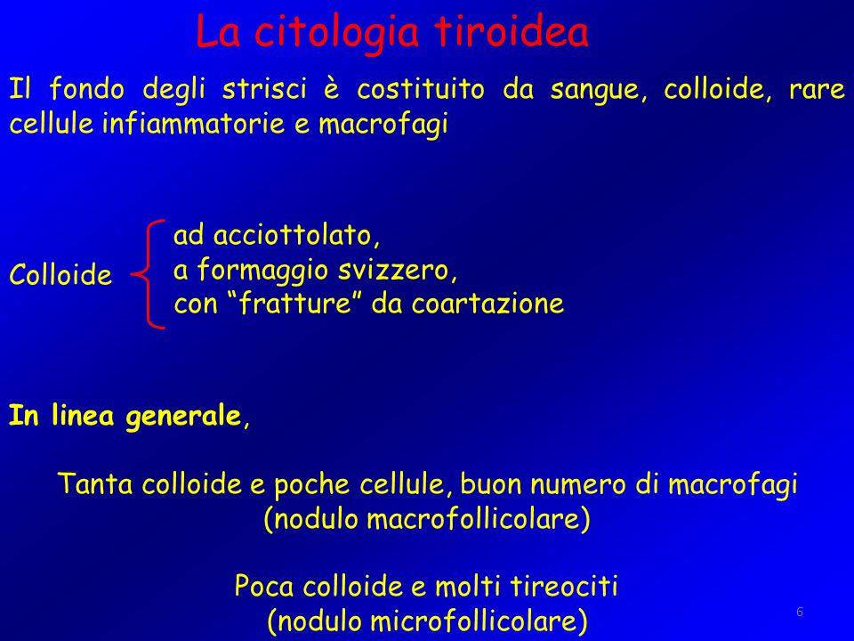 6 La citologia tiroidea Il fondo degli strisci è costituito da sangue, colloide, rare cellule infiammatorie e macrofagi Colloide In linea generale, Ta