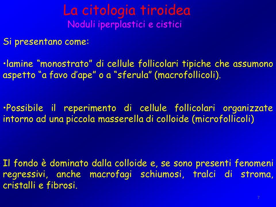 7 La citologia tiroidea Noduli iperplastici e cistici Si presentano come: lamine monostrato di cellule follicolari tipiche che assumono aspetto a favo