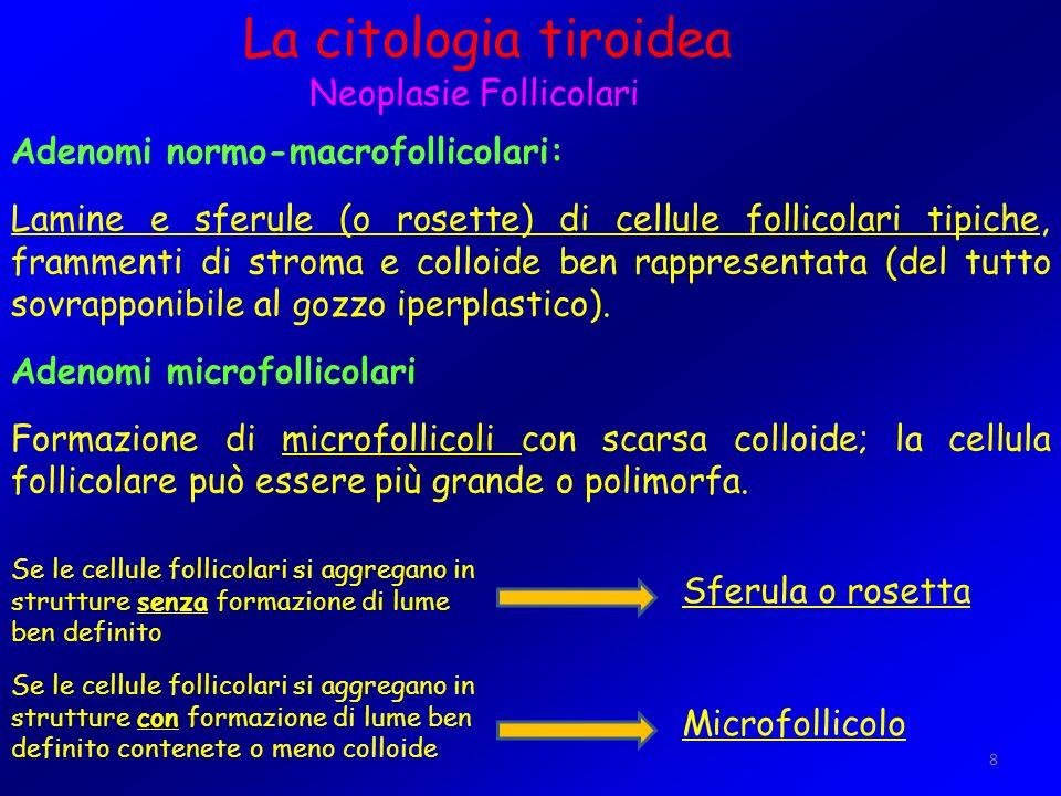 8 La citologia tiroidea Neoplasie Follicolari Adenomi normo-macrofollicolari: Lamine e sferule (o rosette) di cellule follicolari tipiche, frammenti d