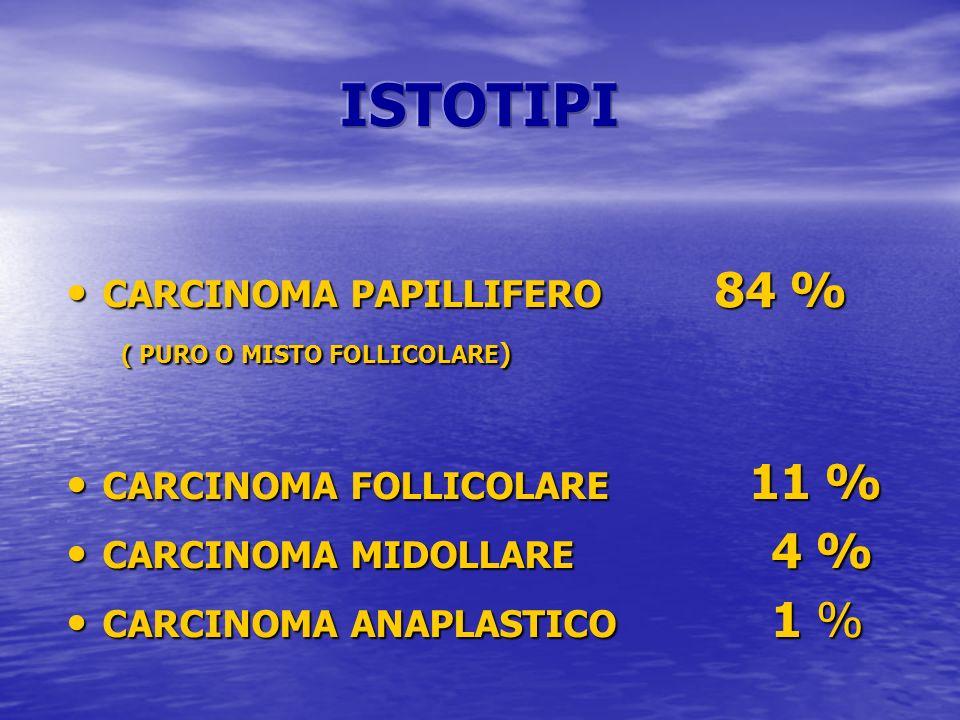 CARCINOMA PAPILLIFERO 84 % CARCINOMA PAPILLIFERO 84 % ( PURO O MISTO FOLLICOLARE ) ( PURO O MISTO FOLLICOLARE ) CARCINOMA FOLLICOLARE 11 % CARCINOMA F