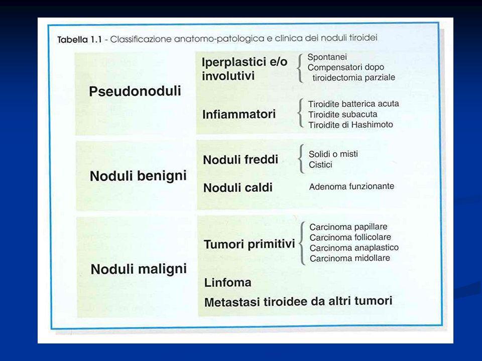 FATTORI DI RISCHIO DEL CANCRO DELLA TIROIDE I principali fattori di rischio del cancro della tiroide evidenziati negli studi epidemiologici sono i seguenti: PRECEDENTE IRRADIAZIONE ESTERNA ANAMNESI FAMILIARE DI CARCINOMA TIROIDEO ANAMNESI FAMILIARE DI POLIPOSI (Sindrome di Gardner) APPORTO ALIMENTARE DI IODIO ALTRI FATTORI LEGATI ALLALIMENTAZIONE ED ALLAMBIENTE PREESISTENTE MALATTIA TIROIDEA (Gozzo congenito da disormonogenesi ; Morbo di Graves, Tiroidite di Hashimoto) SESSO ( F M ) ETA ( V decennio di vita, 15 ANNI 65 ANNI) FATTORI ORMONALI E GRAVIDANZE