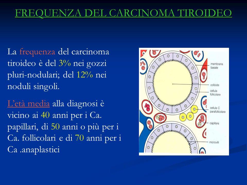 FREQUENZA DEL CARCINOMA TIROIDEO La frequenza del carcinoma tiroideo è del 3% nei gozzi pluri-nodulari; del 12% nei noduli singoli.