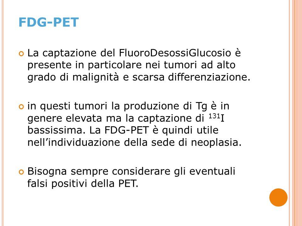 La captazione del FluoroDesossiGlucosio è presente in particolare nei tumori ad alto grado di malignità e scarsa differenziazione.