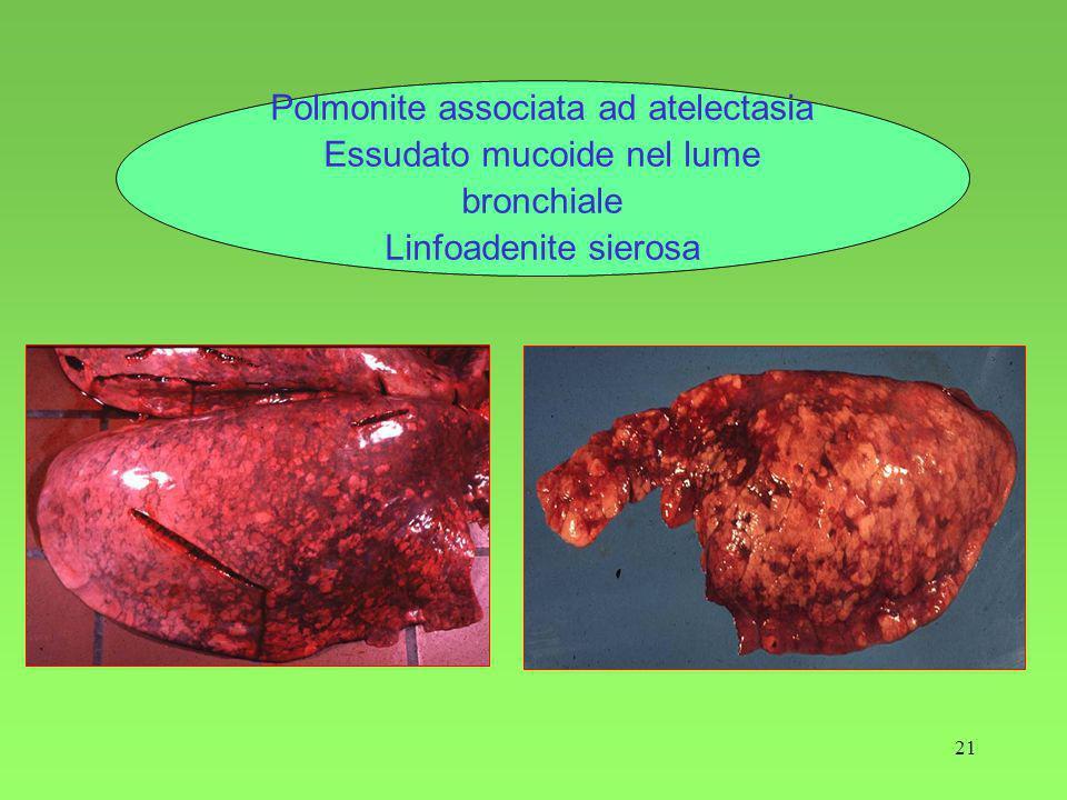 21 Polmonite associata ad atelectasia Essudato mucoide nel lume bronchiale Linfoadenite sierosa