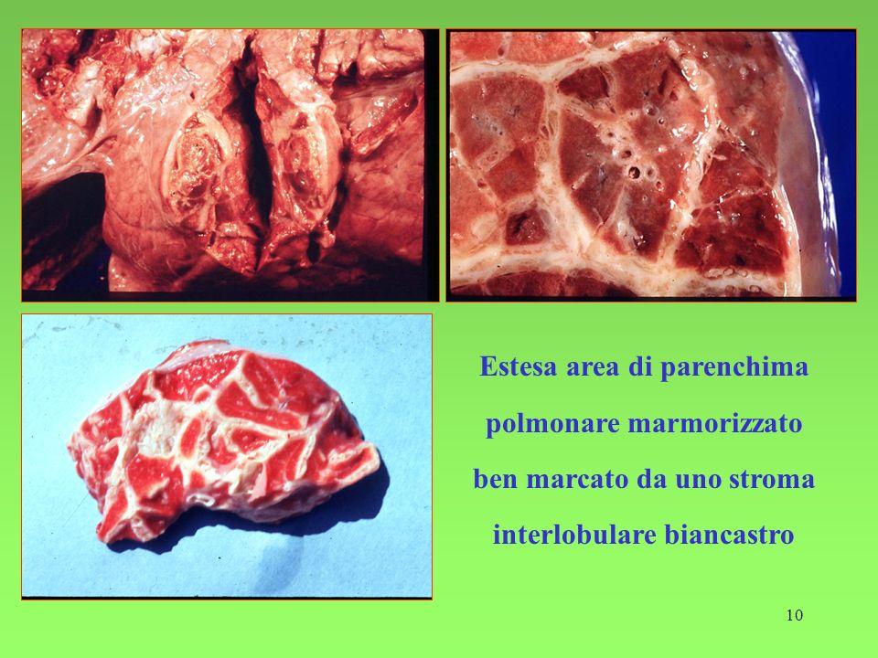 10 Estesa area di parenchima polmonare marmorizzato ben marcato da uno stroma interlobulare biancastro