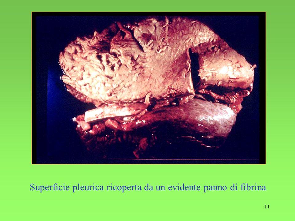11 Superficie pleurica ricoperta da un evidente panno di fibrina