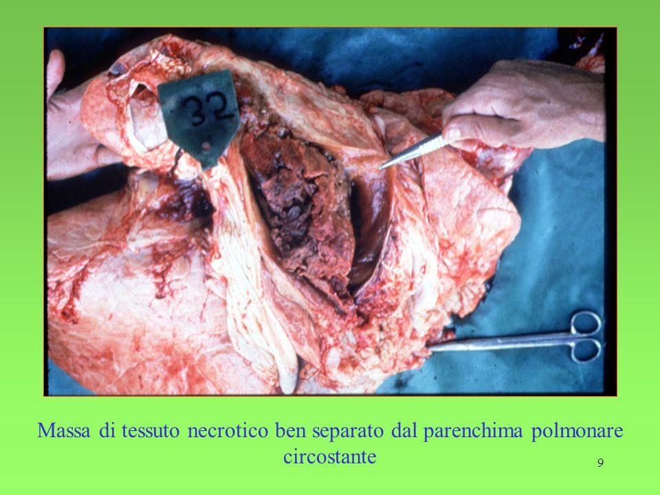 9 Massa di tessuto necrotico ben separato dal parenchima polmonare circostante
