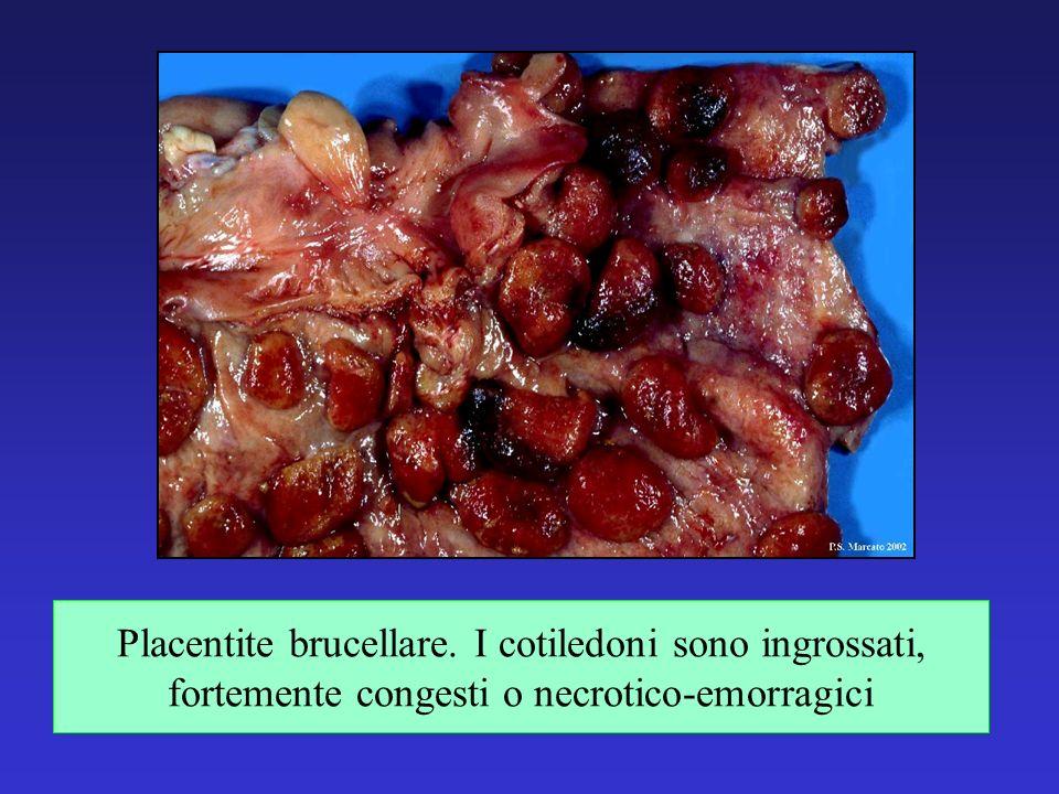 Placentite brucellare. I cotiledoni sono ingrossati, fortemente congesti o necrotico-emorragici