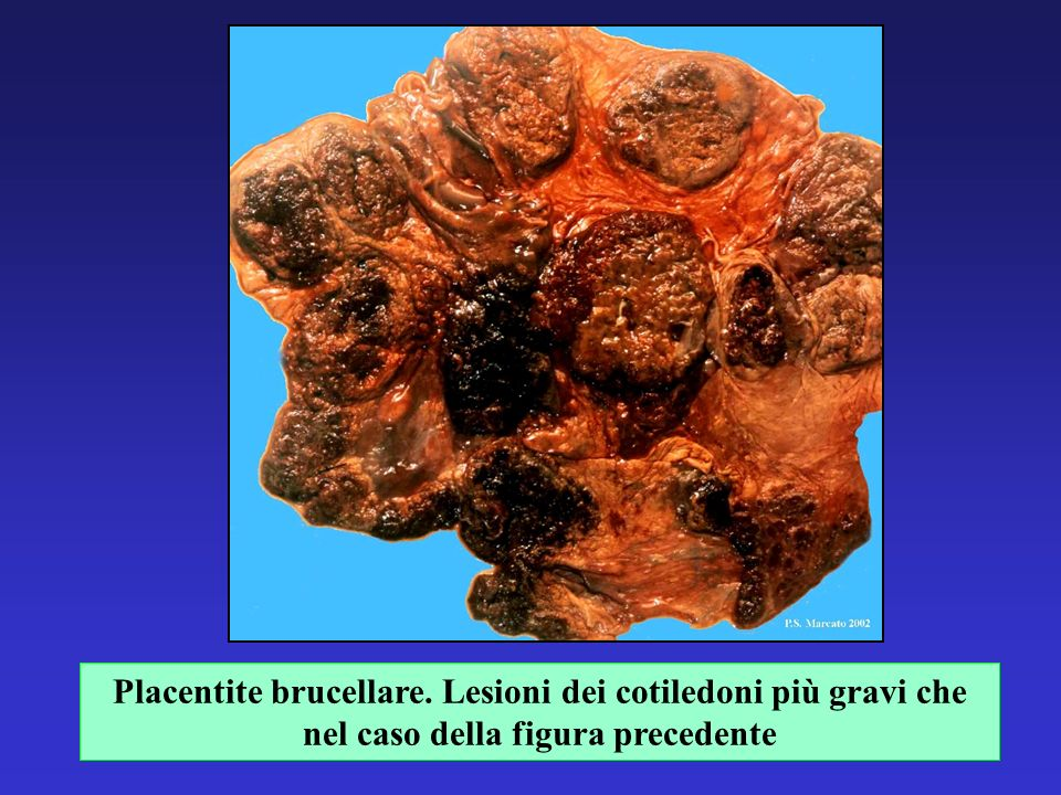 Placentite brucellare. Lesioni dei cotiledoni più gravi che nel caso della figura precedente