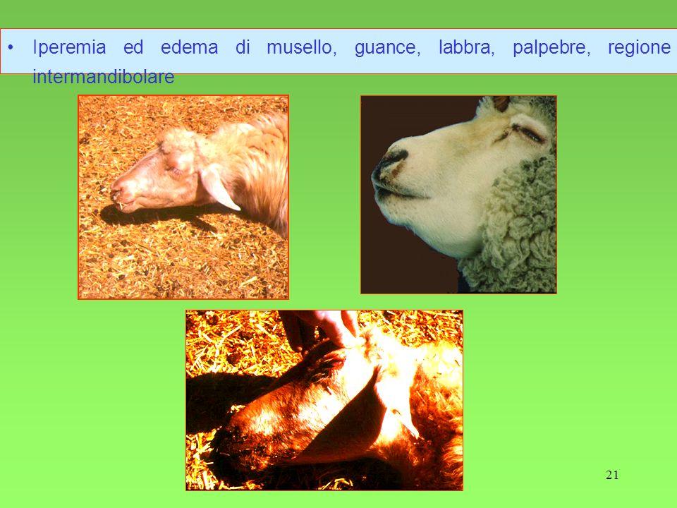 21 Iperemia ed edema di musello, guance, labbra, palpebre, regione intermandibolare