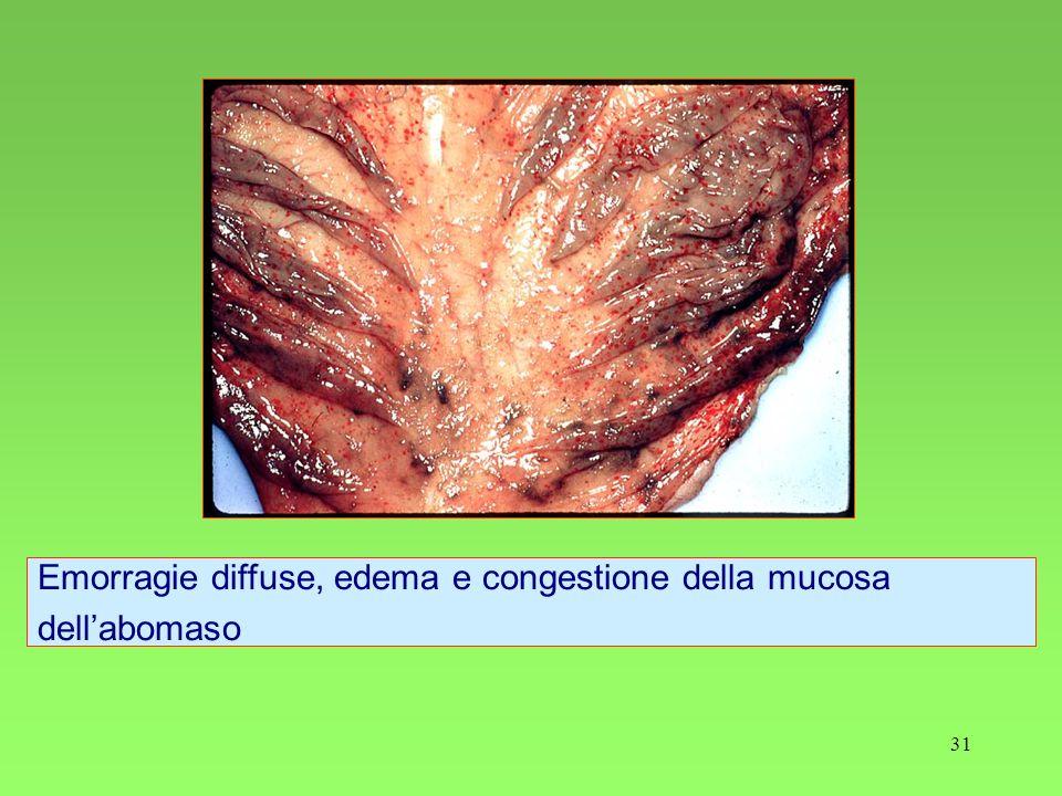 31 Emorragie diffuse, edema e congestione della mucosa dellabomaso
