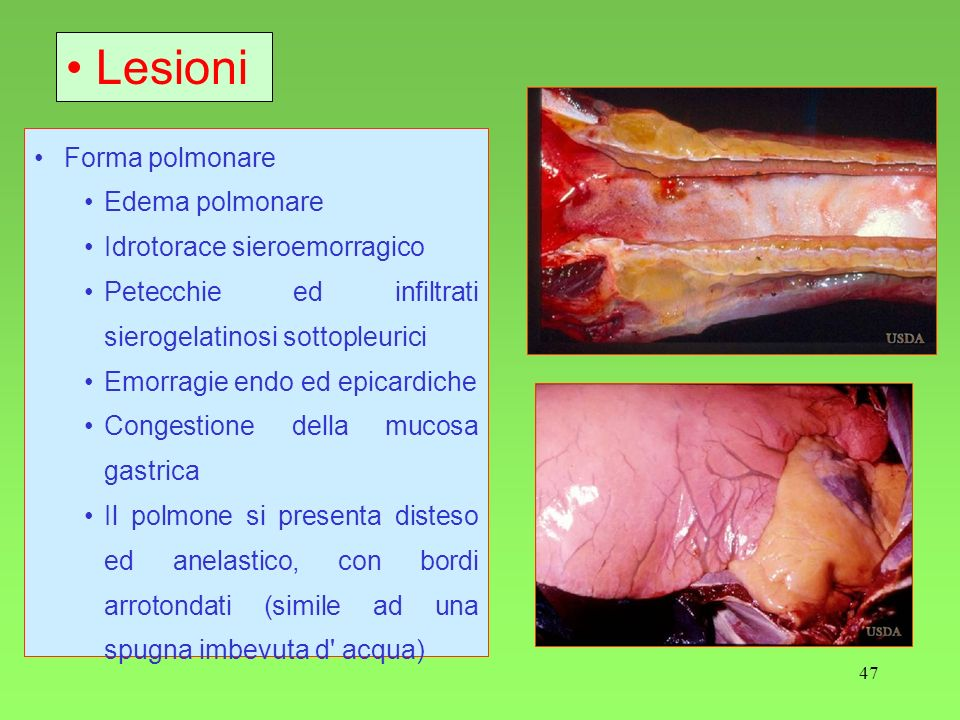 47 Forma polmonare Edema polmonare Idrotorace sieroemorragico Petecchie ed infiltrati sierogelatinosi sottopleurici Emorragie endo ed epicardiche Cong