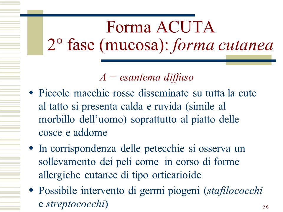 36 Forma ACUTA 2° fase (mucosa): forma cutanea A esantema diffuso Piccole macchie rosse disseminate su tutta la cute al tatto si presenta calda e ruvi