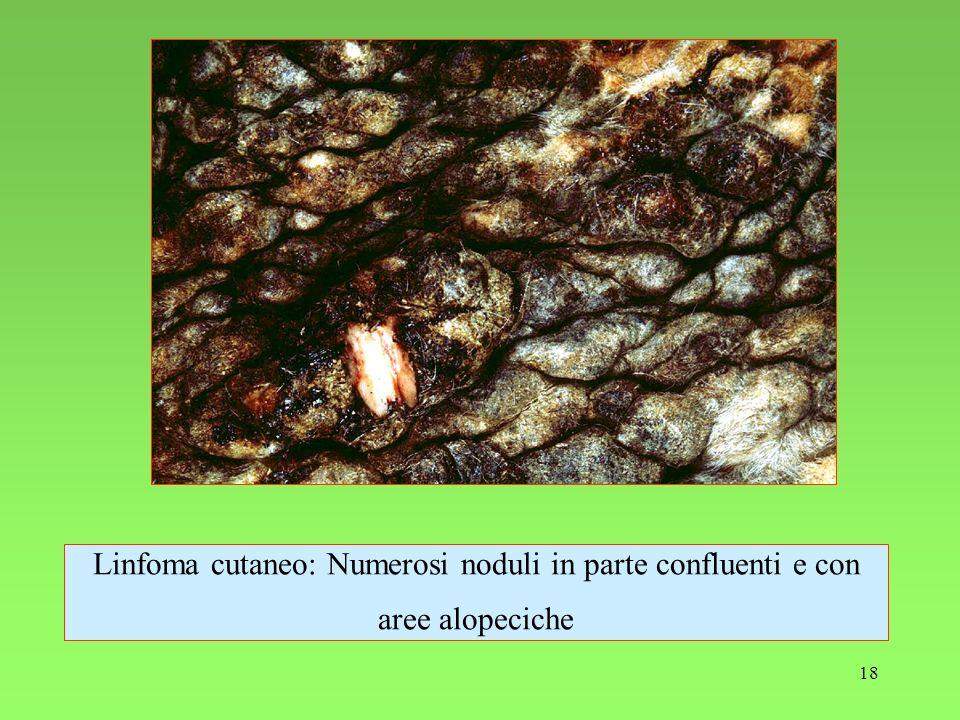 18 Linfoma cutaneo: Numerosi noduli in parte confluenti e con aree alopeciche