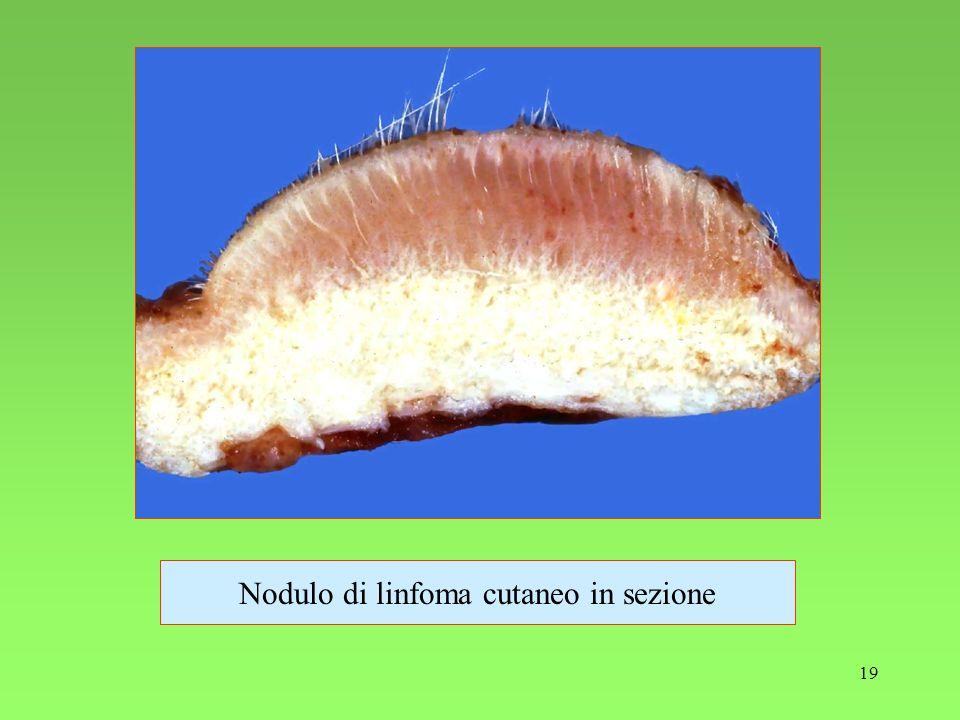 19 Nodulo di linfoma cutaneo in sezione