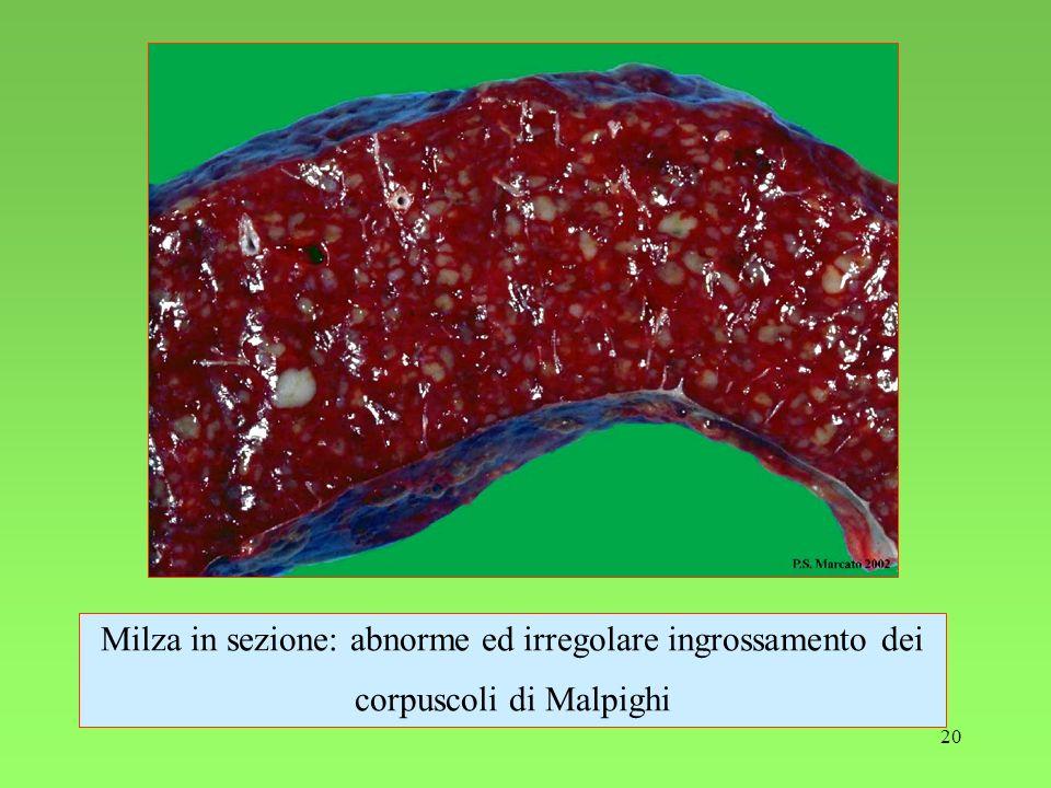 20 Milza in sezione: abnorme ed irregolare ingrossamento dei corpuscoli di Malpighi