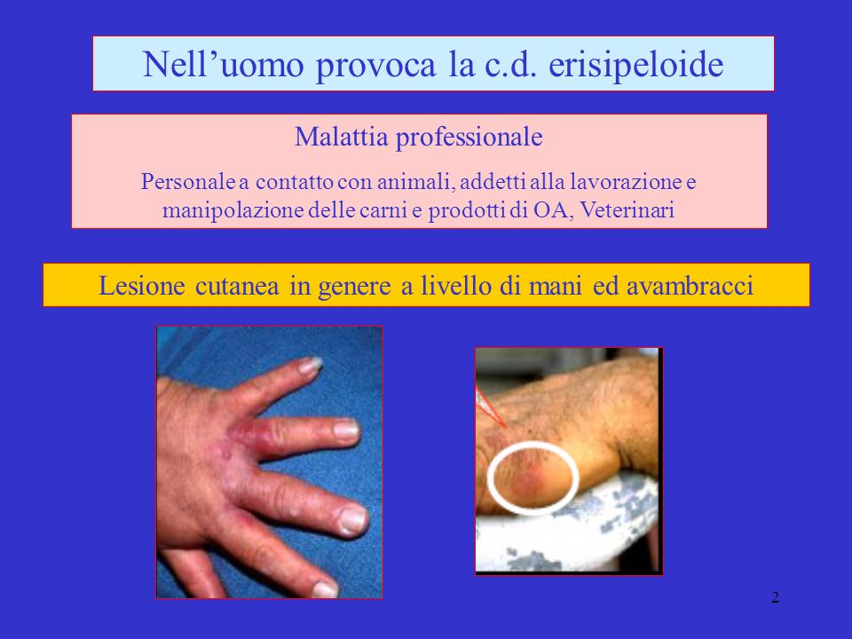 3 Erysipelothrix rhusiopathiae Eziologia Bastoncellare, diritto o incurvato 0,2-0,4x0,8-2,5micron, Gram + immobile, asporigeno, acapsulato, Microaerofilo, catalasi e ossidasi neg.