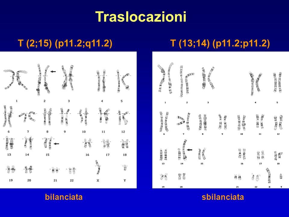 Traslocazioni T (2;15) (p11.2;q11.2) bilanciatasbilanciata T (13;14) (p11.2;p11.2)