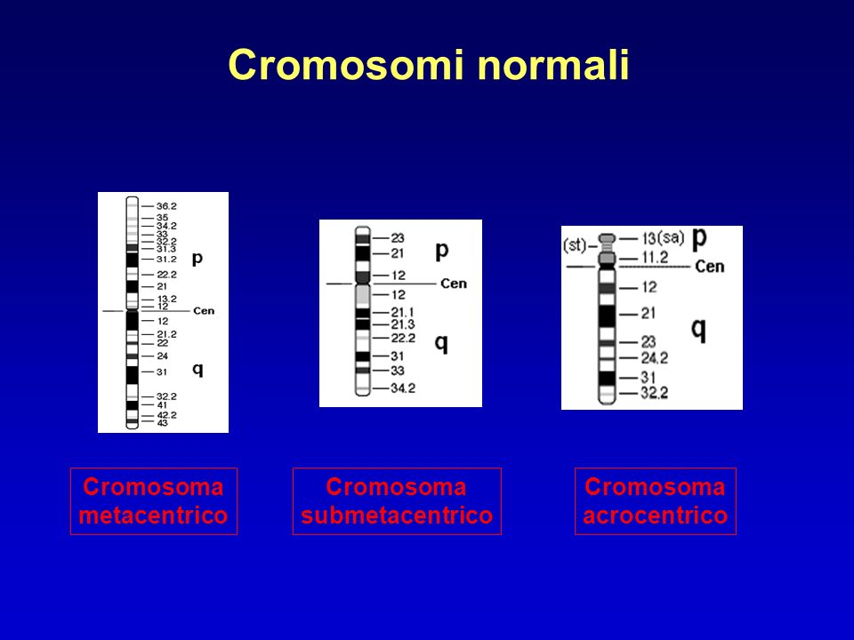 Cromosomi normali Cromosoma metacentrico Cromosoma submetacentrico Cromosoma acrocentrico