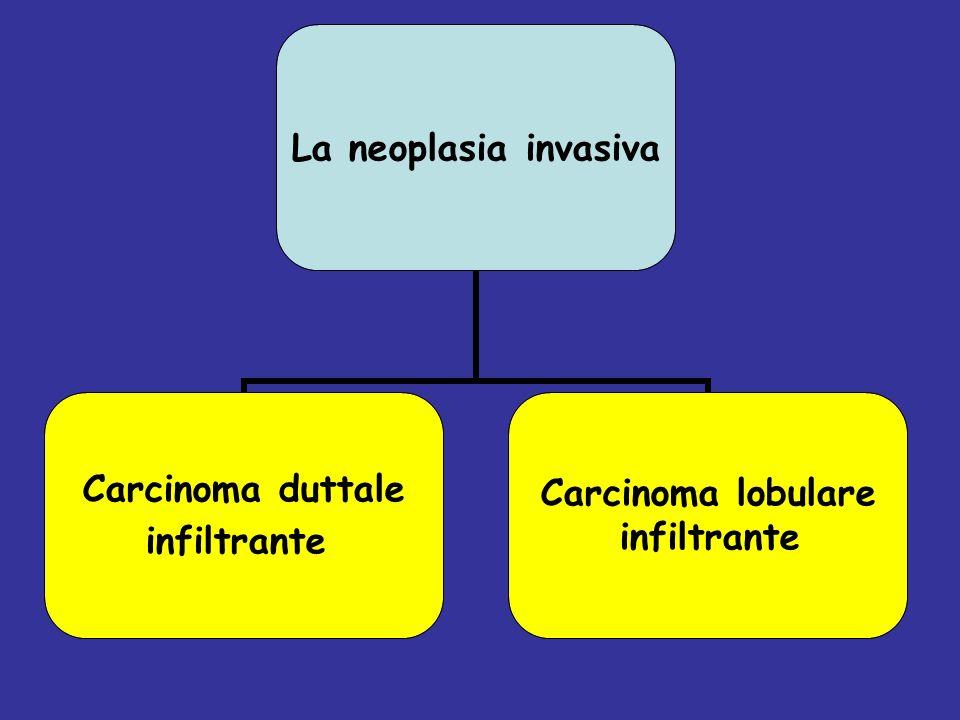 La neoplasia invasiva Carcinoma duttale infiltrante Carcinoma lobulare infiltrante