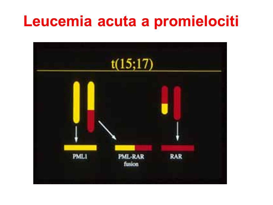 Leucemia acuta a promielociti