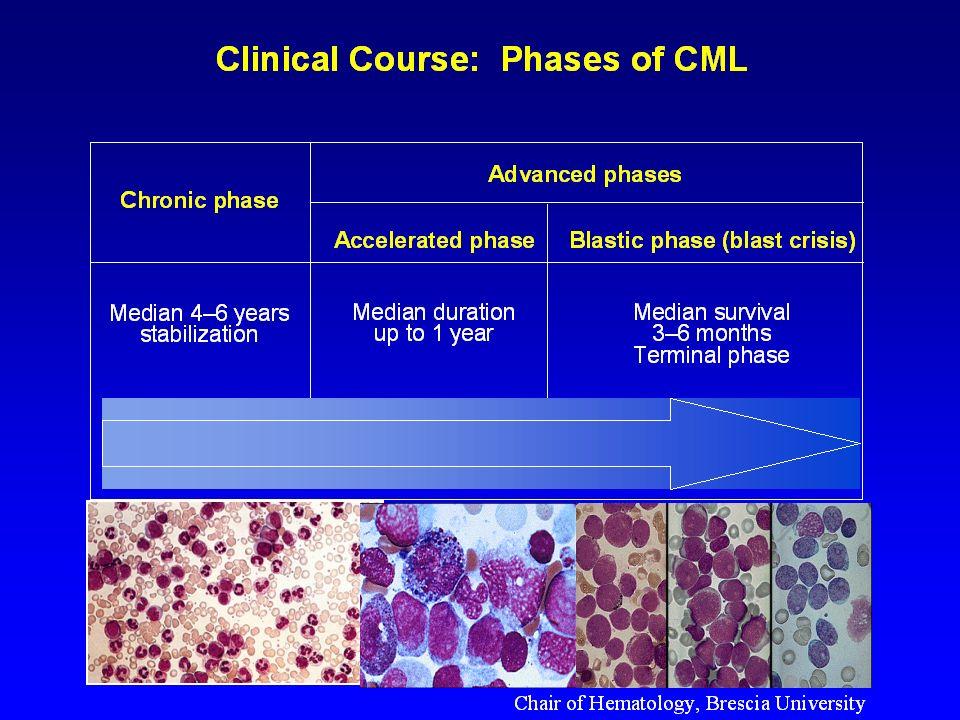 Ph+Myeloid Progenitors Ph+Lymphoid progenitors Ph+ B-cells T-cell Ph-positive Stem Cell My Ph-negative Stem Cell Ph-translocation BCR/ABL rearrangement Ph-translocation BCR/ABL rearrangement Clonal Expansion La traslocazione che da origine al cromosoma Ph avviene in una cellula staminale totipotente Proliferation Expansion Sometimes, Lymphoid blast crisis Ly B cell T cell