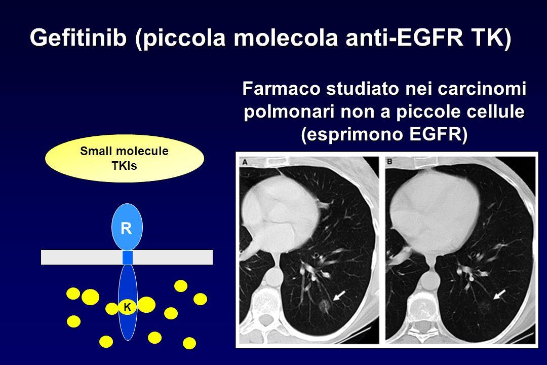 Gefitinib (piccola molecola anti-EGFR TK) Farmaco studiato nei carcinomi polmonari non a piccole cellule (esprimono EGFR) Small molecule TKIs R K