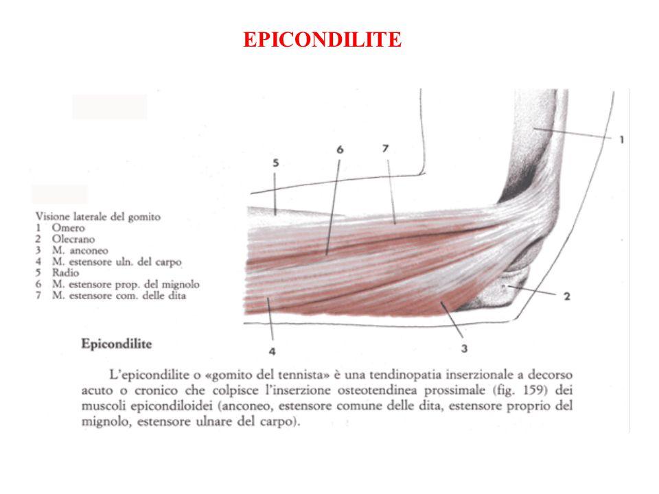 GOMITO DEL TENNISTA E unaffezione assai diffusa che è caratterizzata da dolore nella regione laterale del gomito in corrispondenza dellepicondilo, punto di inserzione dei muscoli estensori dellavambraccio (epicondilite laterale).