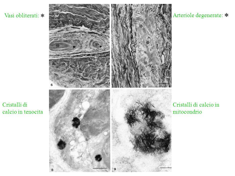 Vasi obliterati: * Arteriole degenerate: * Cristalli di calcio in tenocita Cristalli di calcio in mitocondrio