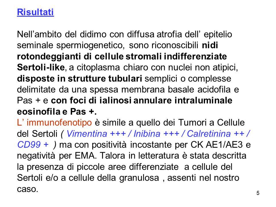 5 Risultati Nellambito del didimo con diffusa atrofia dell epitelio seminale spermiogenetico, sono riconoscibili nidi rotondeggianti di cellule stroma