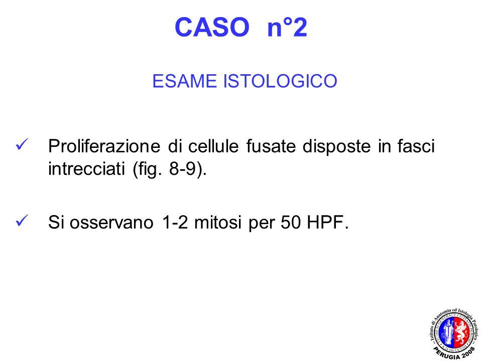 Proliferazione di cellule fusate disposte in fasci intrecciati (fig. 8-9). Si osservano 1-2 mitosi per 50 HPF. CASO n°2 ESAME ISTOLOGICO